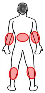 localisation psoriasis