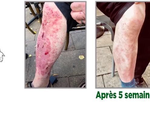psoriasis-jambes-alain