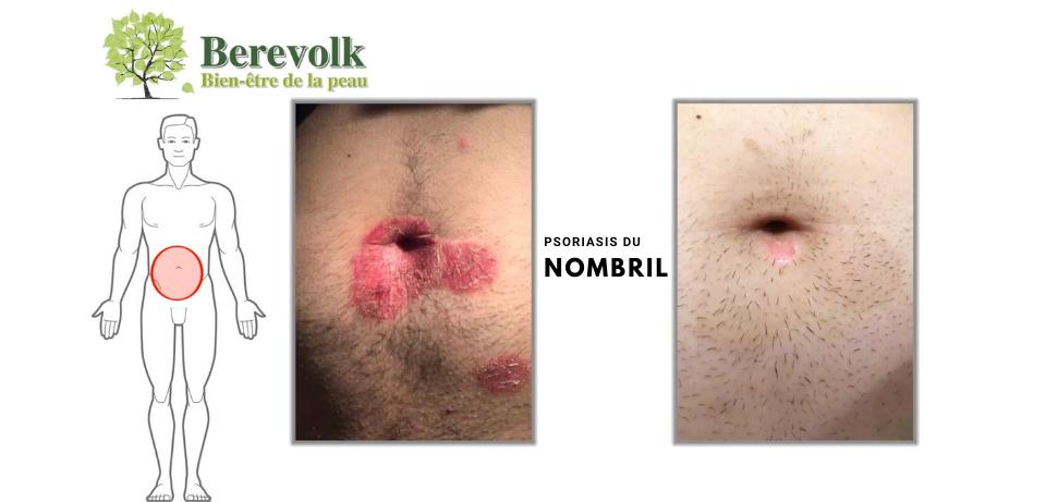 photo psoriasis nombril